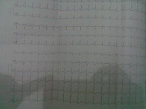 Hasil ECG 1